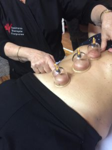 corso cupping therapy